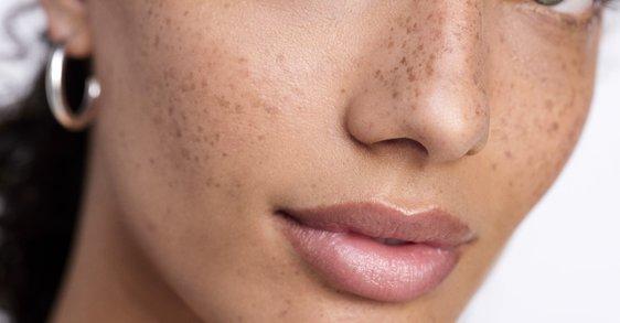 Förnyande formula för stressad hud